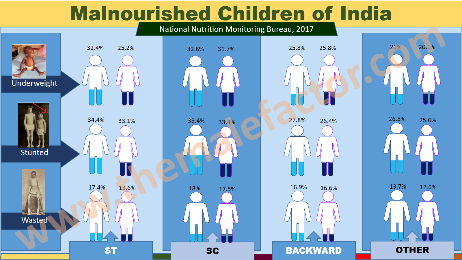 Malnourished-children-of-india